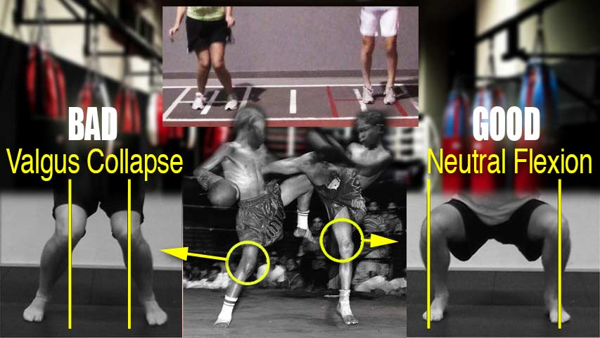 Valgus Knees: Corrective Strength and Conditioning Exercises